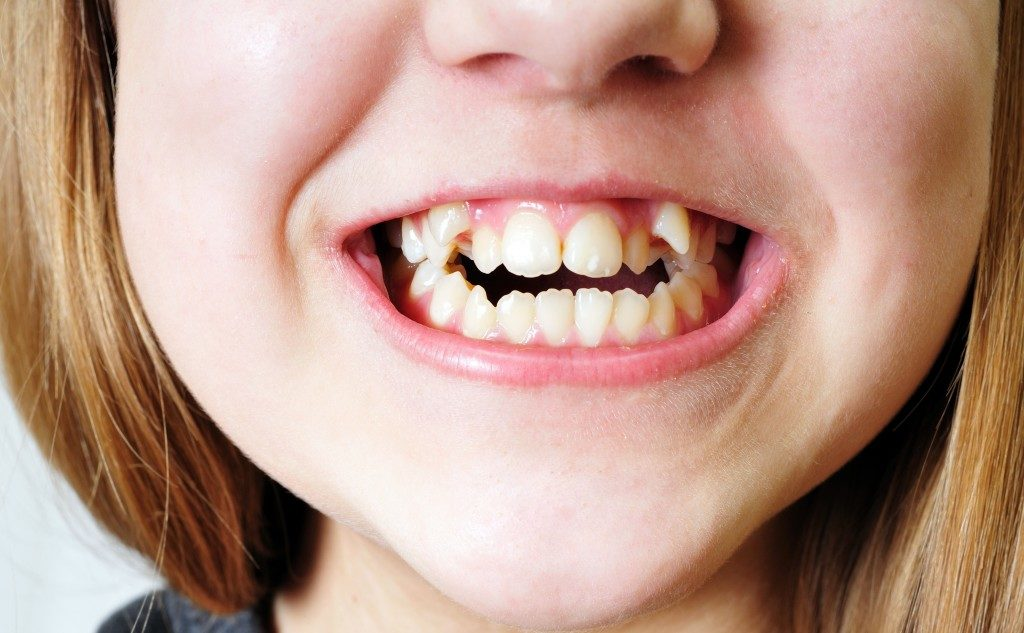 little girl with misaligned teeth